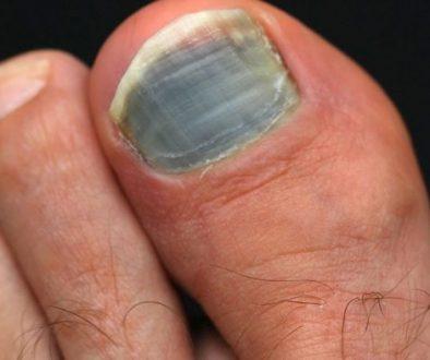 ongle de pied noir