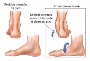 pronation excessive