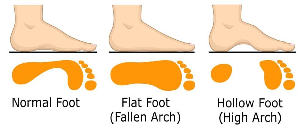 traitements pieds plats