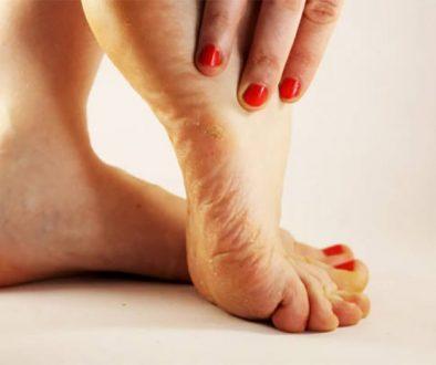 traitement mycose pieds