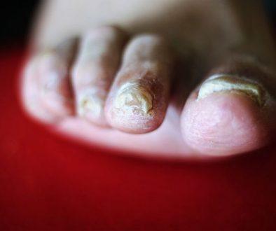ongles de pieds jaunes
